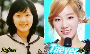 Kim Taeyeon Plastic Surgery Before And After Nose Job, Eyelid Photos