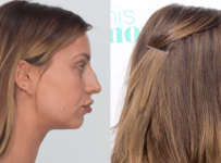 Ferne McCann Plastic Surgery Before And After Photos