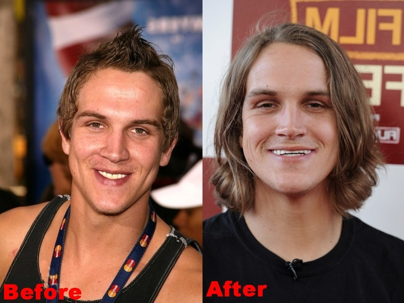 Jason Mewes Plastic Surgery Before And After Photos