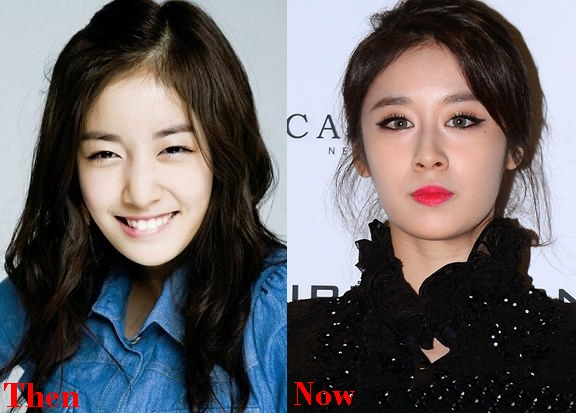 Jiyeon Plastic Surgery Before And After Eyelid Photos