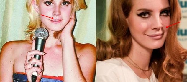 Lana Del Rey Lip Fillers & Nose Job Plastic Surgery Rumors Before And After Photos,