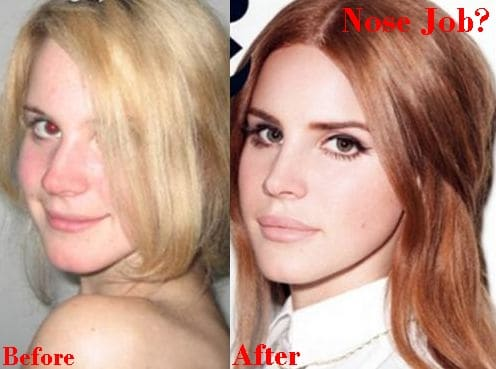 Lana Del Rey Nose Job Plastic Surgery Rumors Before And After Photos