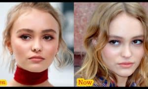 Lily-Rose Depp Plastic Surgery Before And After Photos