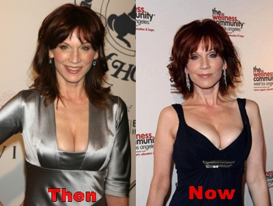 Marilu Henner Plastic Surgery Rumors Before And After Photos