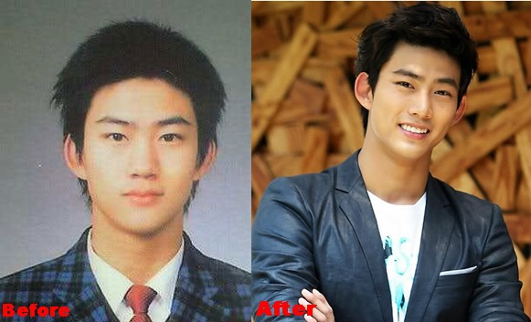 Ok Taecyeon Plastic Surgery Before And After Nose Job, Eyelid Photos