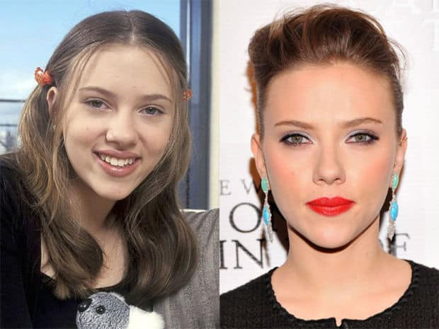 Scarlett Johansson Nose Job Before And After Rhinoplasty Photos