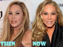 Adrienne Maloof Before And After Plastic Surgery