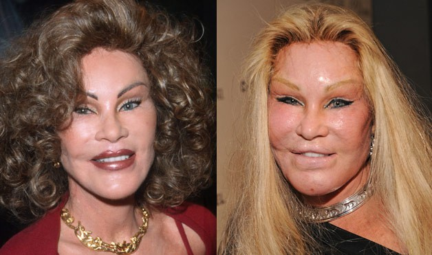 Bad Celebrity Plastic Surgery Before And After Pictures