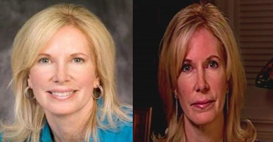 Beth Holloway Plastic Surgery Before And After Photos