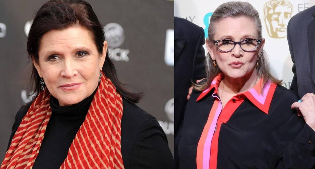 Carrie Fisher Plastic Surgery Before And After Cosmetics Pictures