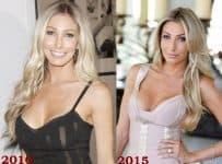 Heather Bilyeu Plastic Surgery Before And After Face Photos
