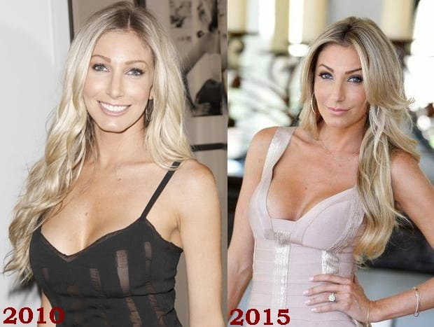 Heather Bilyeu Plastic Surgery Before And After Face Photos