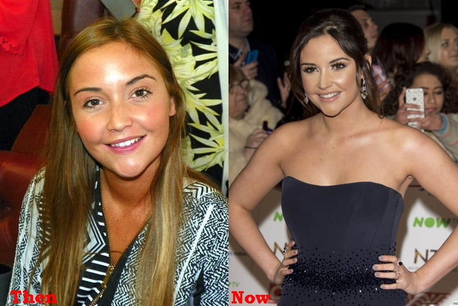 Jacqueline Jossa Plastic Surgery Before And After Photos