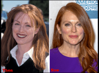 Julianne Moore Plastic Surgery Botox, Facelift Before After Photos