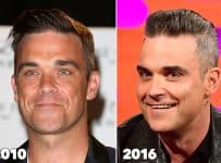 Robbie Williams Plastic Surgery Before And After Botox Fillers Photos
