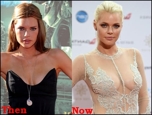 Sophie Monk Plastic Surgery Before And After Boobs Photos