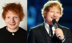 Ed Sheeran Plastic Surgery Before And After Face Photos