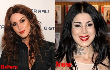 Kat Von D Facial Filers Plastic Surgery Before And After Photos