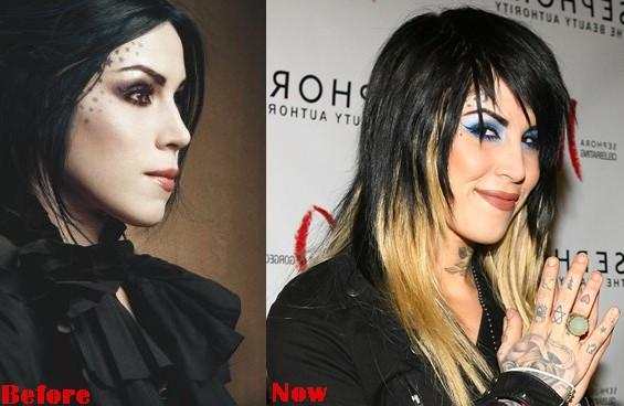 Kat Von D Nose Job Plastic Surgery Before And After Photos