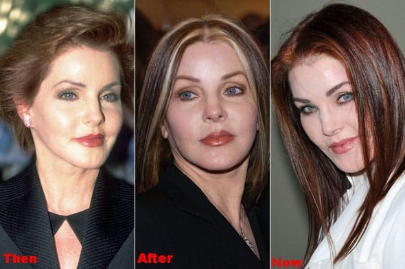 Priscilla Presley Plastic Surgery Before After Photos
