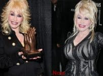 Dolly Parton Breasts Implants Before And After Photos