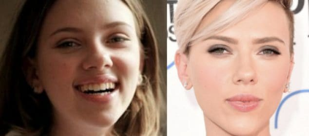 Hollywood Actresses Who Have Had Nose Job