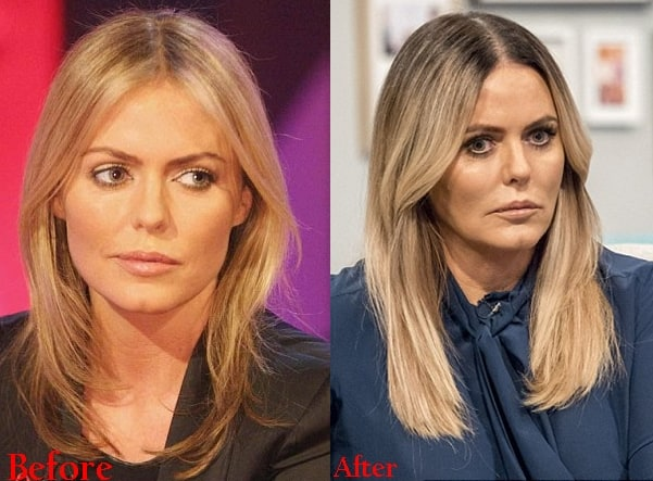 Patsy Kensit Plastic Surgery Before And After Photos