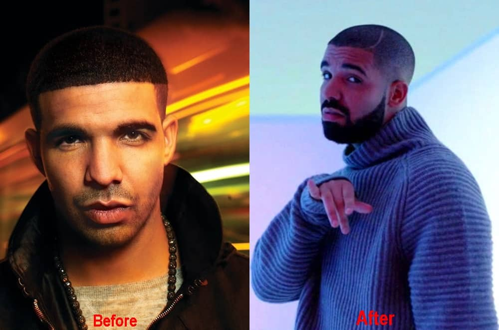 Did Drake Get A Nose Job Plastic Surgery Before After Photos