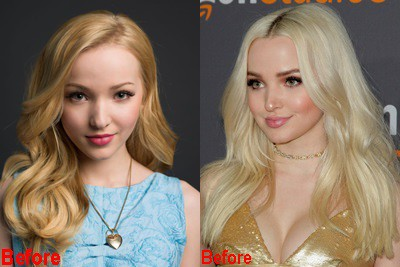 Dove Cameron Before And After Nose Job Plastic Surgery