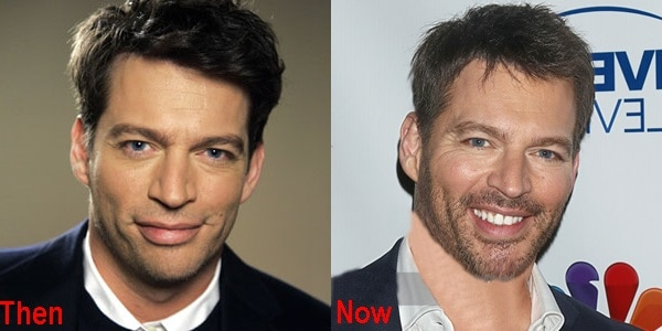 Harry Connick Jr Plastic Surgery Before And After Pictures