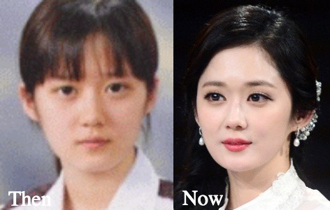 Jang Nara Plastic Surgery Before And After Facelift, Eyelid Photos