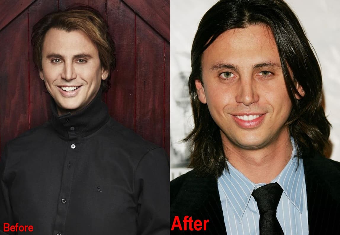 Jonathan Cheban Plastic Surgery Before And After Face Photos