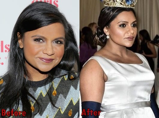 Mindy Kaling Botox Injections