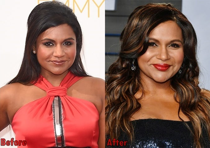 Mindy Kaling Lip Injections
