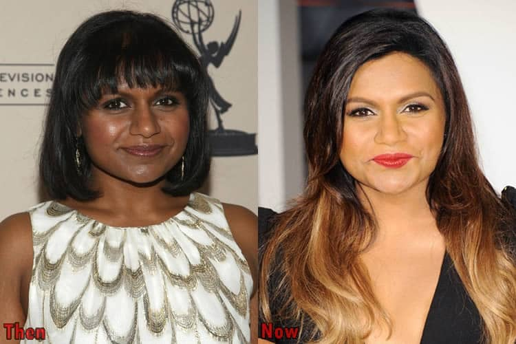 Mindy Kaling Nose Job Before And After Photos