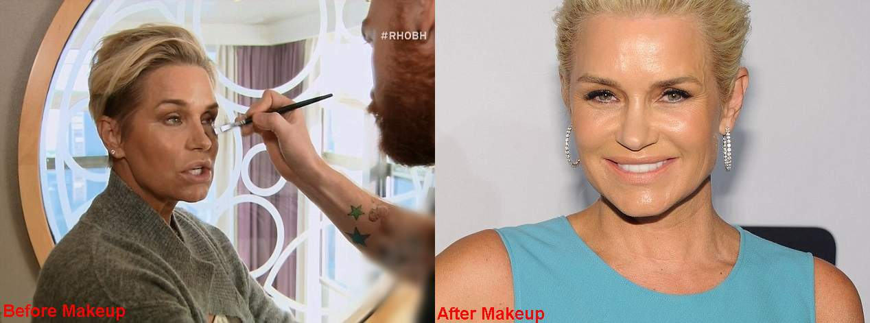 Yolanda Foster Plastic Surgery Before And After Makeup Free Photos