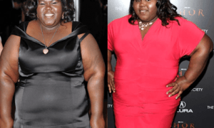 Gabourey Sidibe Plastic Surgery Before And After Photos