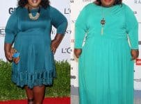 Gabourey Sidibe Weight Loss Surgery Before And After Photos