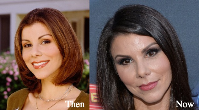 heather dubrow plastic surgery before and after pictures