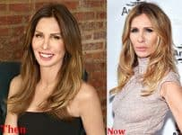 Carole Radziwill Plastic Surgery Before And After Photos