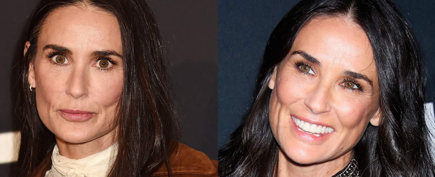 Demi Moore Plastic Surgery Before And After Face, Boobs Photos
