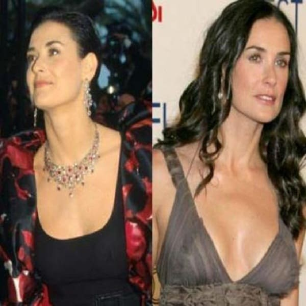 Demi Moore boobs job