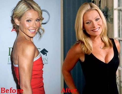 Kelly Ripa Breasts Implants Before And After Photos