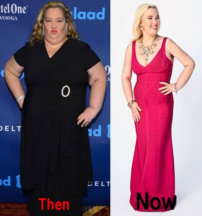 Mama June Plastic Surgery 2017 Before And After Photos