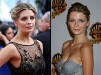 Mischa Barton boobs job before and after plastic surgery photo