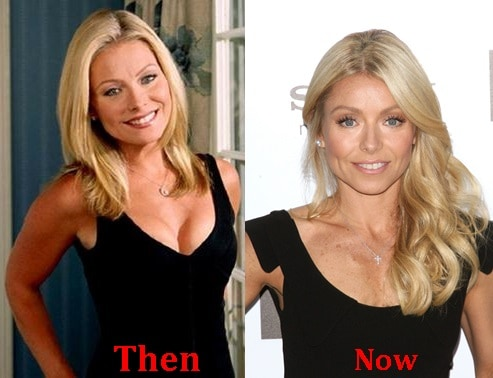 kelly ripa removes breast implants before and after photos