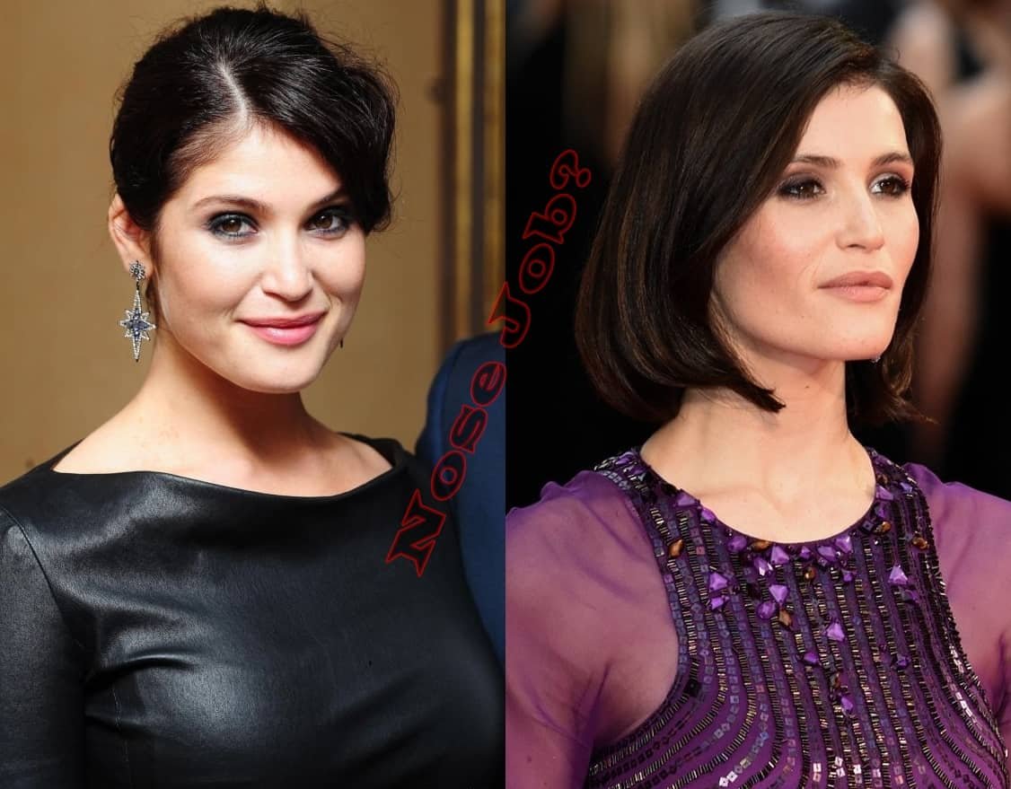 Did Gemma Arterton Had Nose Job Plastic Surgery Or Not