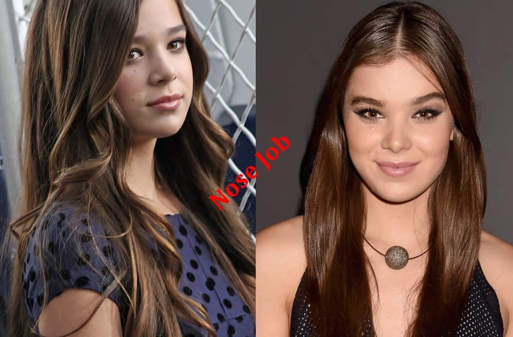 Hailee Steinfeld Plastic Surgery Before And After Nose Job Photos
