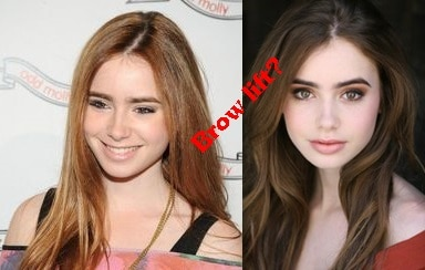 Lily Collins Plastic Surgery Before And After Eyebrow Photos