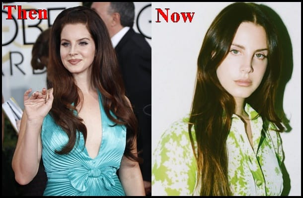 Lana Del Rey Lip Fillers Plastic Surgery 2018